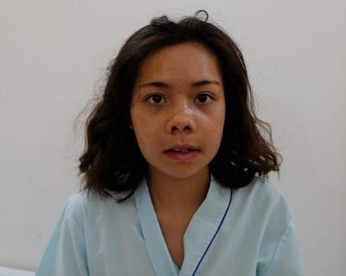 Phẫu thuật mũi ngắn - Phương pháp sửa mũi Cao dài đẹp tự nhiên - Hình 5
