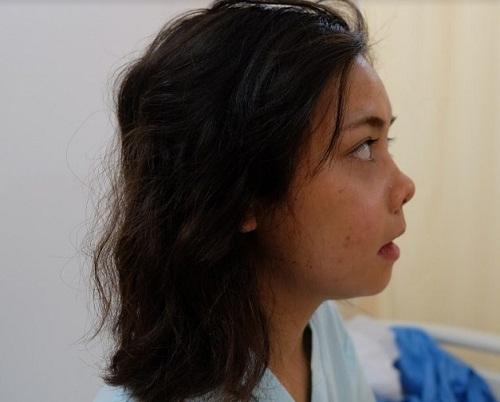 Phẫu thuật mũi ngắn - Phương pháp sửa mũi Cao dài đẹp tự nhiên - Hình 6