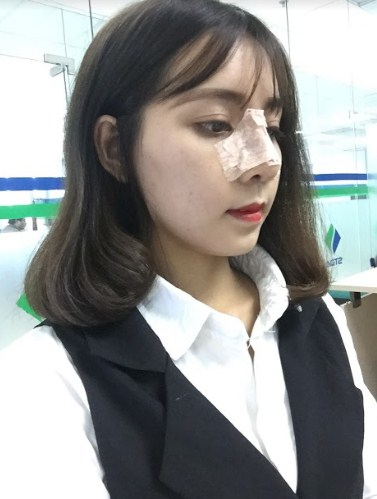Săm soi từng bước trong quy trình phẫu thuật mũi ngắn tại bệnh viện