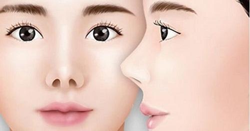 Phẫu thuật mũi ngắn - Phương pháp sửa mũi Cao dài đẹp tự nhiên - Hình 1