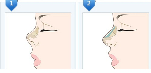 Phẫu thuật mũi ngắn - Phương pháp sửa mũi Cao dài đẹp tự nhiên - Hình 4