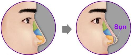 Phẫu thuật mũi ngắn - Phương pháp sửa mũi Cao dài đẹp tự nhiên - Hình 2