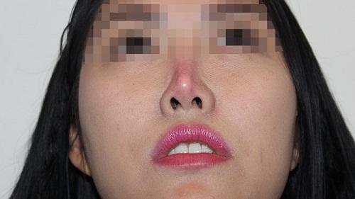 Tại sao nâng mũi không được quan hệ? - Hiện tượng đầu mũi đỏ là do những nguyên nhân nào?