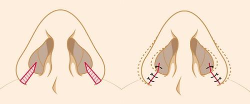 Phẫu thuật thu gọn cánh mũi có đau không? Có nguy hiểm không? 8