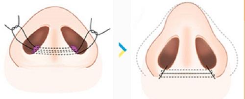 Phẫu thuật thu gọn cánh mũi có đau không? Có nguy hiểm không? 7
