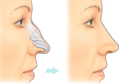 2 Phương pháp nâng mũi gồ cực An toàn và Hiệu Quả cho mũi Đẹp - Hình 1