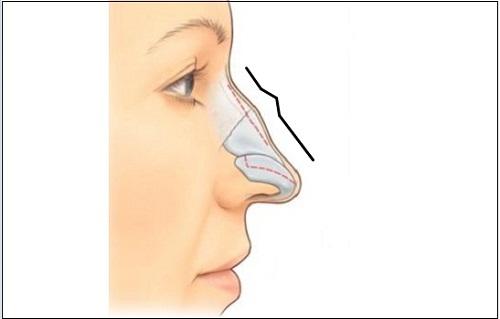 Chỉnh sửa tướng mũi gồ liệu có ảnh hưởng đến vận mệnh không?