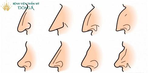 Các đặc điểm của tướng mũi phụ nữ | Địa chỉ xem tướng uy tín Nhất  - Ảnh 1