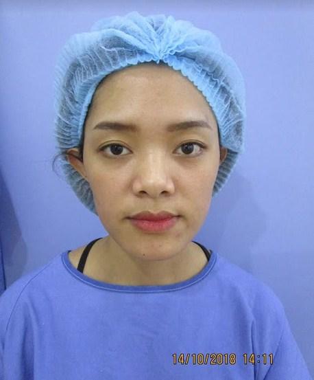Đừng vuốt mũi cao mà rước họa vào thân – Chia sẻ từ cô gái trẻ 9X - Hình 5