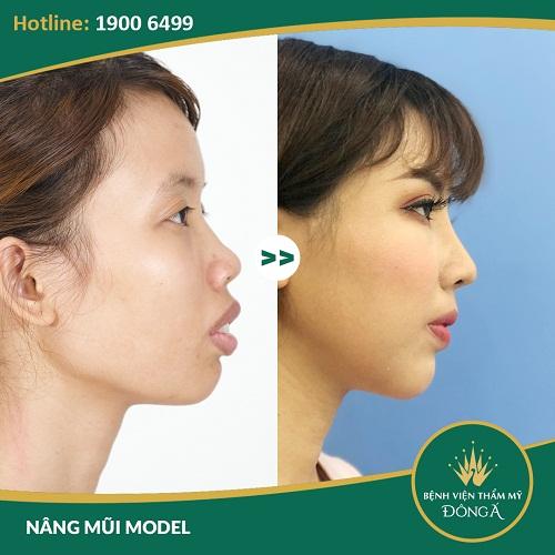 Nâng mũi Hàn Quốc có tốt không? 5 Yếu tố giúp dáng mũi đẹp lâu dài - Hình 8