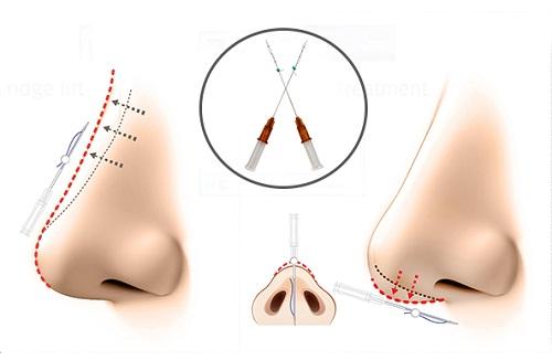 Nâng mũi bằng chỉ review | 7 Khác Biệt so với nâng mũi phẫu thuật - Hình 3