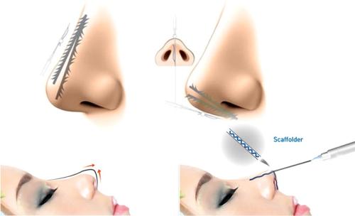 Nâng mũi bằng chỉ review | 7 Khác Biệt so với nâng mũi phẫu thuật - Hình 2