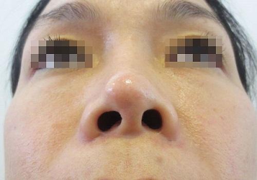 Nâng mũi có biến chứng không? 6 Cách hạn chế mọi biến chứng - Hình 4