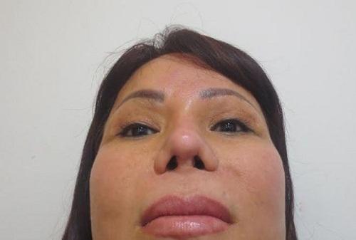 Nâng mũi có biến chứng không? 6 Cách hạn chế mọi biến chứng - Hình 5