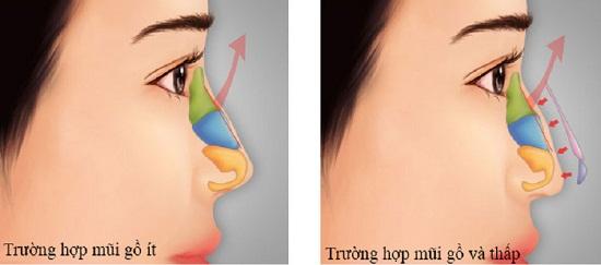 2 Phương pháp nâng mũi gồ cực An toàn và Hiệu Quả cho mũi Đẹp - Hình 2