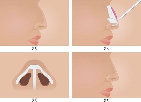 2 Phương pháp nâng mũi gồ cực An toàn và Hiệu Quả cho mũi Đẹp - Hình 3