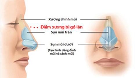 2 Phương pháp nâng mũi gồ cực An toàn và Hiệu Quả cho mũi Đẹp - Hình 4