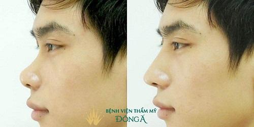 Nâng mũi không phẫu thuật ở đâu Đẹp, An Toàn và Uy Tín nhất? - Hình 6