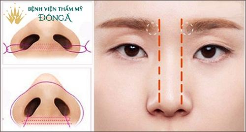 TOP 8 Cách làm lỗ mũi nhỏ lại tự nhiên ÍT động đến Dao Kéo - Hình 6