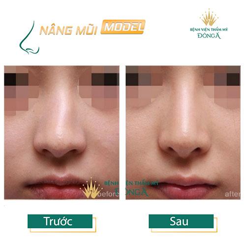 Cách nhận biết mũi bị lệch và 4 TIP Sửa mũi bị lệch Hiệu Quả nhất - Hình 12