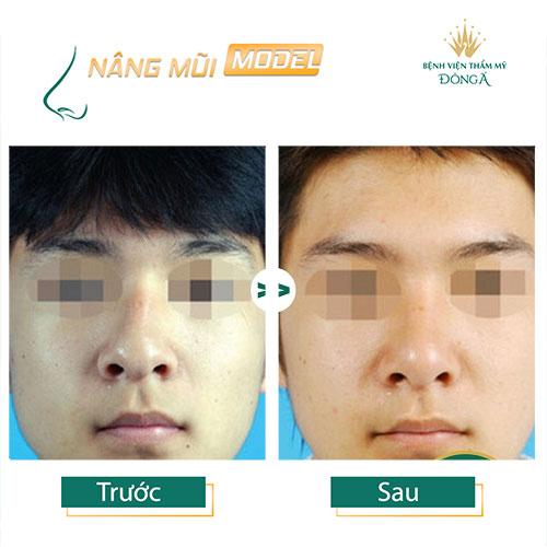 Cách nhận biết mũi bị lệch và 4 TIP Sửa mũi bị lệch Hiệu Quả nhất - Hình 13