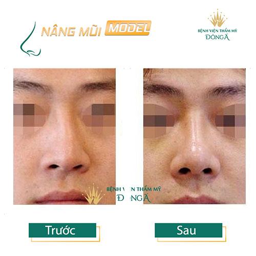 Cách nhận biết mũi bị lệch và 4 TIP Sửa mũi bị lệch Hiệu Quả nhất - Hình 11