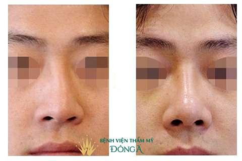 Cách nhận biết mũi bị lệch và 4 TIP khắc phục mũi lệch Tốt Nhất - Hình 4