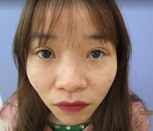 Con gái mũi tẹt xinh | Quan điểm Cổ Lỗ này còn đúng với thời nay? Hình 7