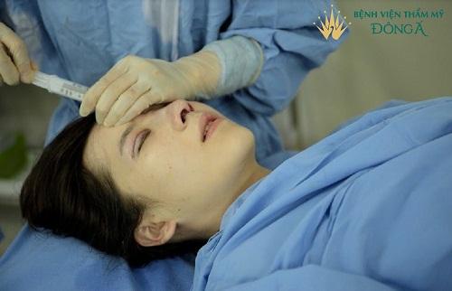 Hút dịch sau khi nâng mũi | Giải đáp 7 Thắc Mắc phổ biến nhất - Hình 4