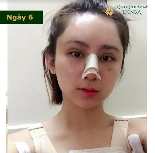 Nâng mũi bao lâu thì lành ? 3 Cách giúp mũi bạn Hồi Phục Nhanh hơn - Hình 3