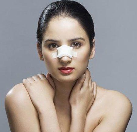 Nâng mũi bao lâu thì lành ? 3 Cách giúp mũi bạn Hồi Phục Nhanh hơn - Hình 1