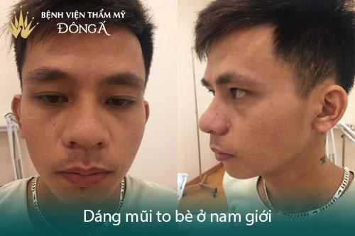 Nâng mũi cho nam giới – 5 Dáng mũi làm mất vẻ Đẹp Trai của bạn - Hình 5