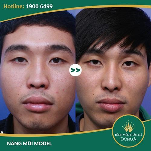 Nâng mũi cho nam giới – 5 Dáng mũi làm mất vẻ Đẹp Trai của bạn - Hình 7
