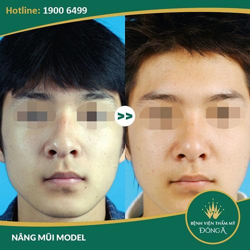 Nâng mũi cho nam giới – 5 Dáng mũi làm mất vẻ Đẹp Trai của bạn - Hình 6