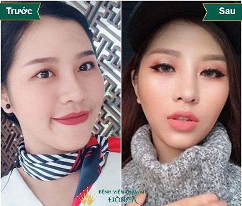 [Chia sẻ] Các dáng mũi nâng tôn lên nét Kiêu Sa của người phụ nữ - Hình 4