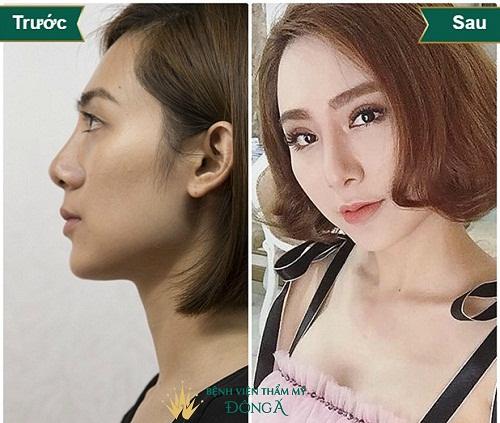 [Chia sẻ] Các dáng mũi nâng tôn lên nét Kiêu Sa của người phụ nữ - Hình 3