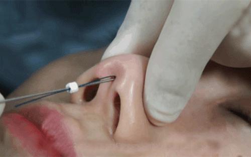 3 Cách nâng mũi tự nhiên không cần phẫu thuật | Không Đau Đớn - Hình 4