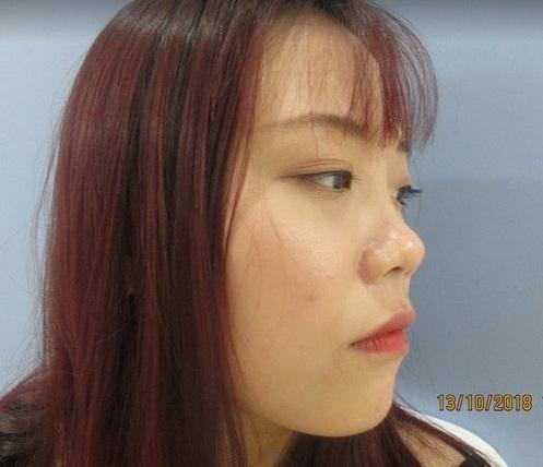 Một trong những trường hợp điển hình nên thực hiện nâng mũi bọc sụn vành tai