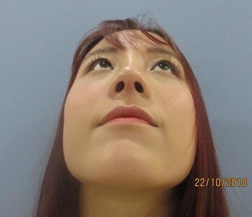 Nhật ký đi nâng mũi - Trải nghiệm Để Đời của cô gái trẻ đáng mến - Hình 7