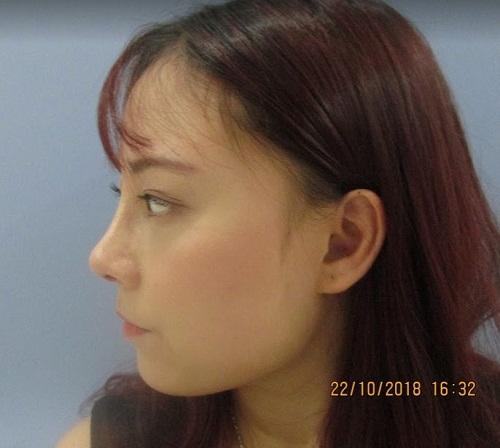 Nhật ký đi nâng mũi - Trải nghiệm Để Đời của cô gái trẻ đáng mến - Hình 6