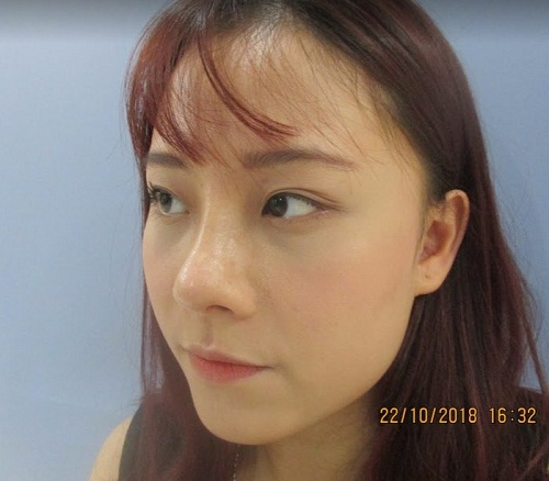 Nhật ký đi nâng mũi - Trải nghiệm Để Đời của cô gái trẻ đáng mến - Hình 8