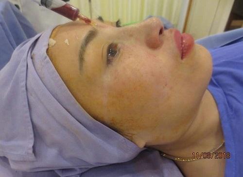 Những hiện tượng sau khi nâng mũi và 8 Cách Khắc Phục tốt nhất - Hình 3