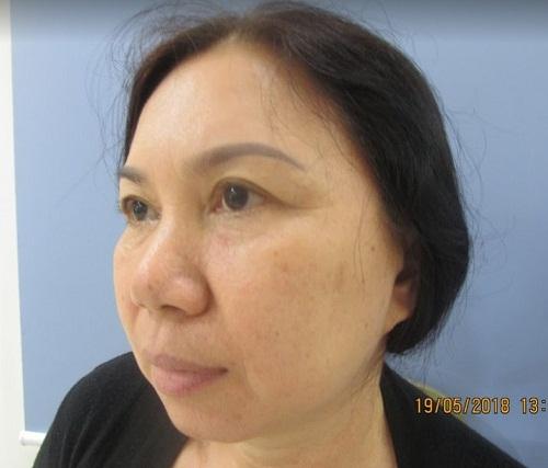 Tướng Mũi Cà Chua là gì ? Cách chữa dáng mũi này hiệu quả nhất - Hình 4