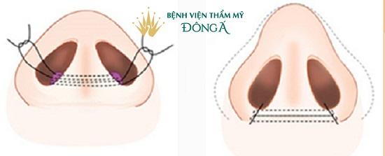 Cắt cánh mũi và cuộn cánh mũi khác nhau ở 5 Điểm Nổi Bật này - Hình 4