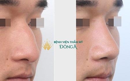 5 Chi tiết nhận dạng Lỗ Mũi Két: Tạm biệt mũi xấu nhờ kỹ thuật này - Hình 8