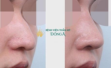 5 Chi tiết nhận dạng Lỗ Mũi Két: Tạm biệt mũi xấu nhờ kỹ thuật này - Hình 7