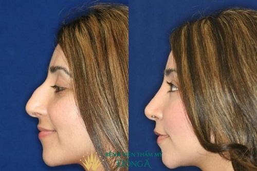 5 Chi tiết nhận dạng Lỗ Mũi Két: Tạm biệt mũi xấu nhờ kỹ thuật này - Hình 5