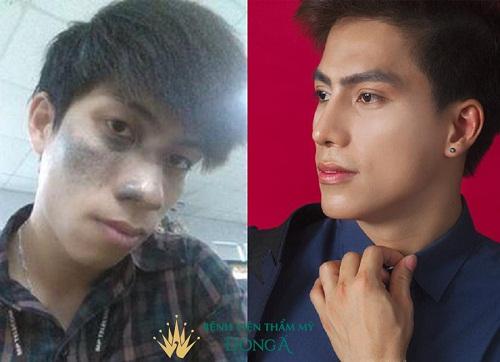 TOP 5 Dáng mũi đẹp nam giới của các HOT BOY Showbiz Việt - Hình 10