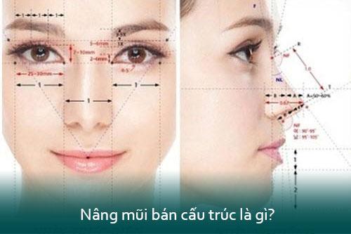 Nâng mũi cấu trúc là gì? Nâng mũi cấu trúc có vĩnh viễn không? - Hình 4