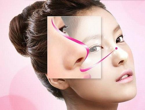 Nâng mũi cấu trúc S Line | 5 Băn khoăn thường gặp được giải đáp - Hình 1